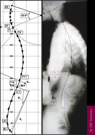 cbp-chart-3