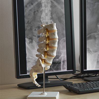 Is Chiropractic Still an Option After Back Surgery or Spinal